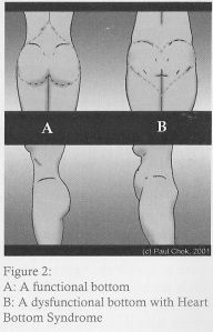 Heart Bottom Syndrome